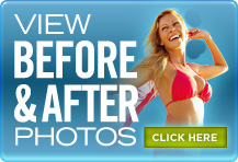 Breast Reduction Cost Candidacy Consumer Guide To Plastic Surgery