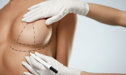 doctor marking patient breast for surgical incisions