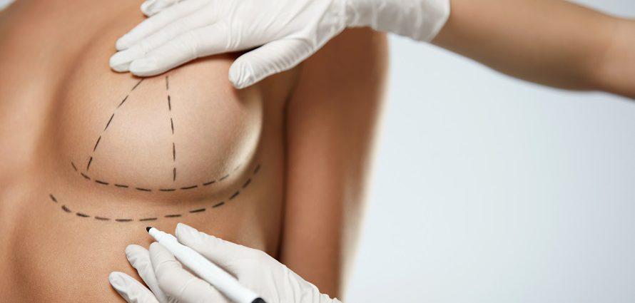 Breast Lift Surgery Mastopexy
