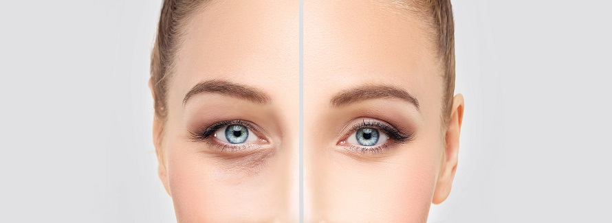split image showing the results of eyelid surgery