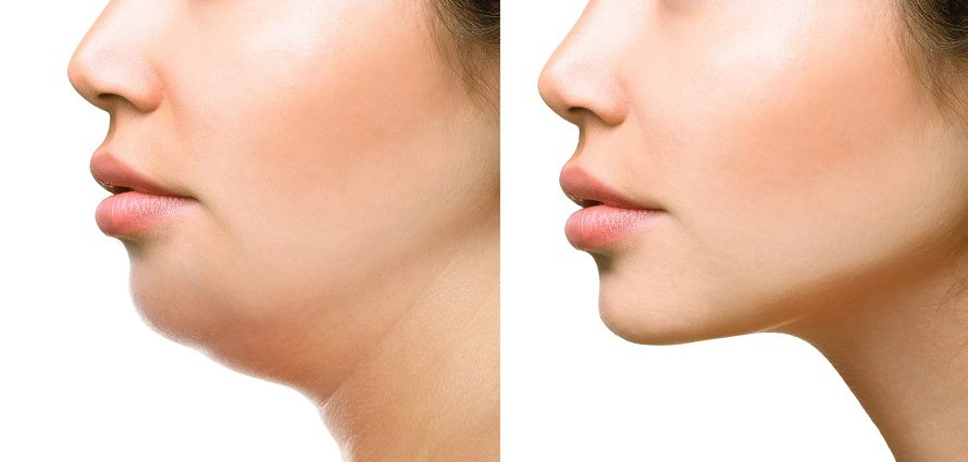 female patient before and after facial liposuction