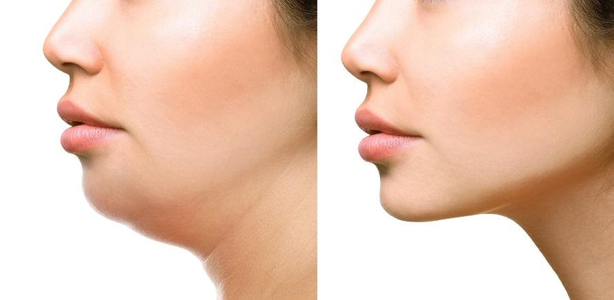 Facial Liposuction Face Liposuction Cost Risks