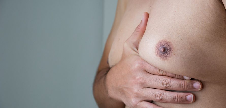 male gynecomastia patient