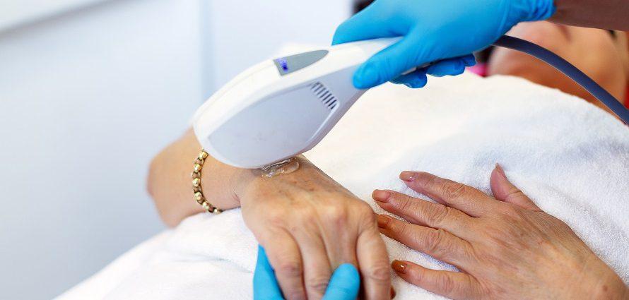 cosmetic hand rejuvenation treatment