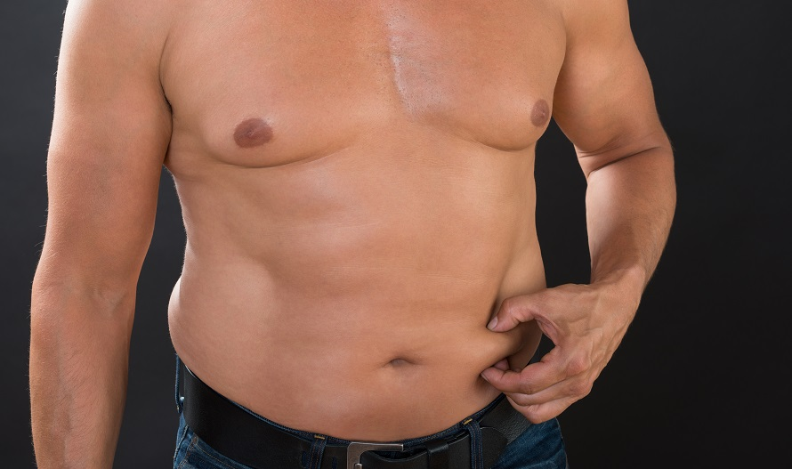 Male Tummy Tuck Risks Recovery And Cost Of Male Tummy Tuck
