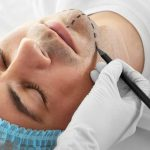 male patient getting prepped for cosmetic chin surgery