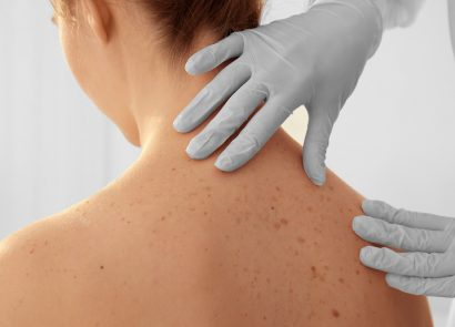mole inspection as part of skin cancer treatment