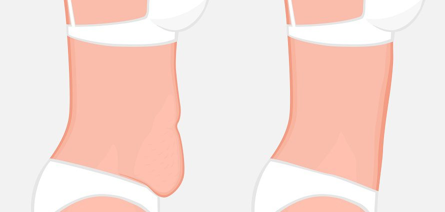 illustration showing a before and after tummy tuck comparison