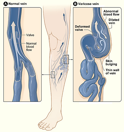Varicose Vein Treatment Options And What They Cost